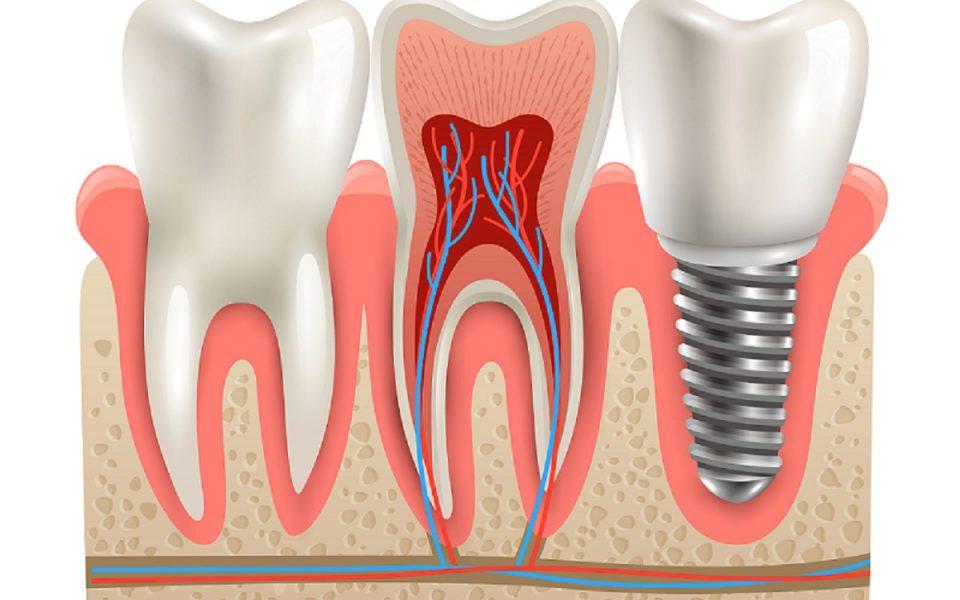 Impianti dentali: sciogliamo i dubbi più diffusi